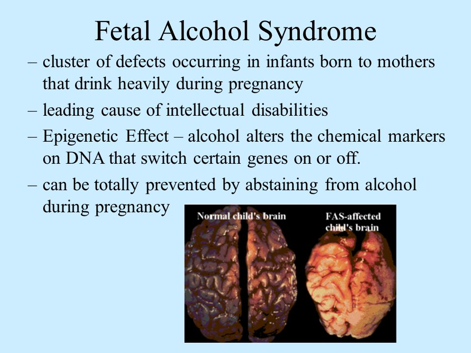 Fetal Alcohol Syndrome –cluster of defects occurring in infants born to mothers that drink heavily during pregnancy –leading cause of intellectual disabilities –Epigenetic Effect – alcohol alters the chemical markers on DNA that switch certain genes on or off.
