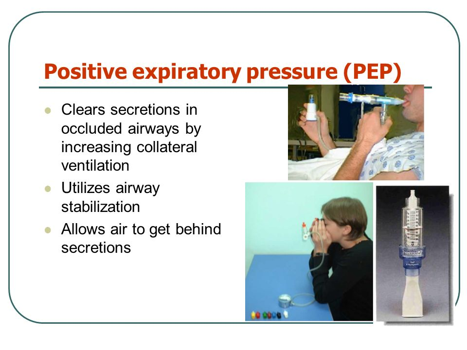 Occlusion Pressure P0.1. Special Procedure Negative airway ...