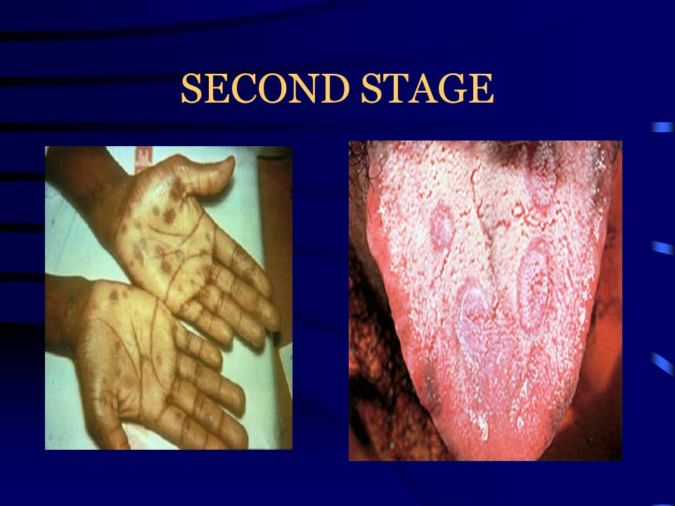 Signs and Symptoms of Genital Warts (HPV) In most cases there are no symptoms Small, soft, flesh colored warts on, around, or inside sex organs Warts often resemble cauliflower like growths and are generally small, dry, hard and pinkish in color Itching or burning around the infected area