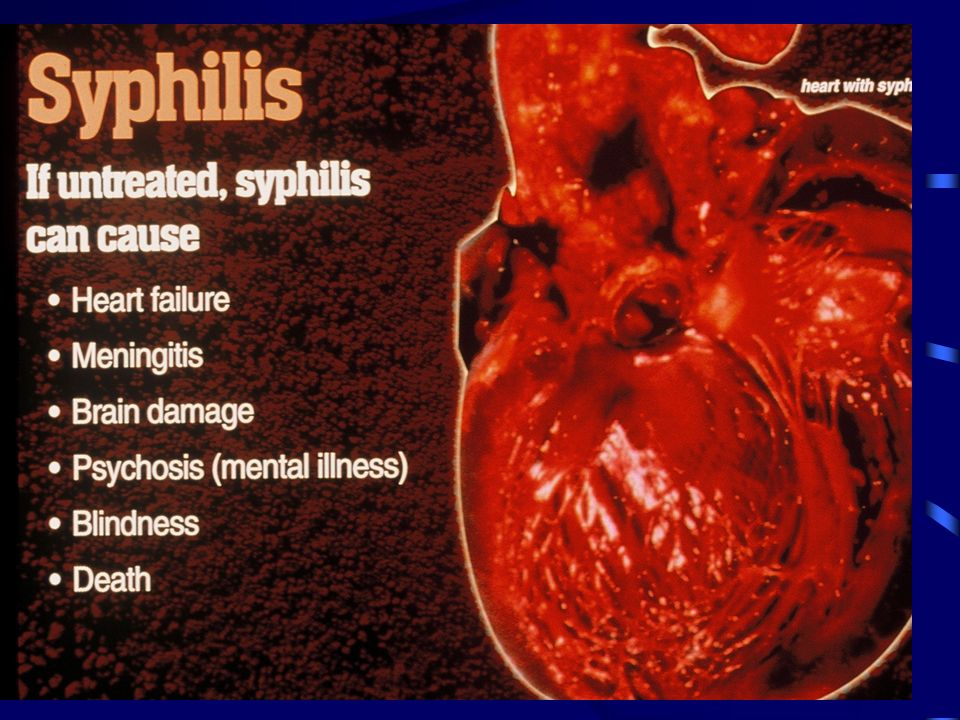 Signs and Symptoms of Gonorrhea: Bacteria can infect the penis, eyes, throat and rectum Discharge from sexual organs Irregular menstrual bleeding Frequent and painful urination Abdominal pain during sex 4 out of 5 people have no symptoms