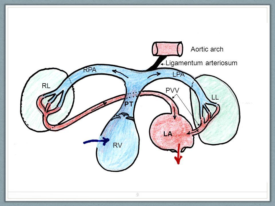 RV PT RPA LPA RL LL LA PVV Aortic arch Ligamentum arteriosum 9