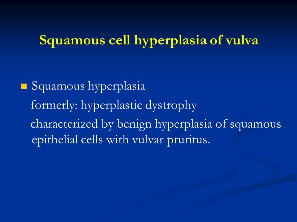 Squamous cell hyperplasia of vulva Squamous hyperplasia formerly: hyperplastic dystrophy characterized by benign hyperplasia of squamous epithelial ce