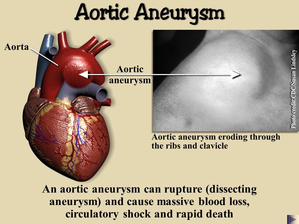 aorta aneurysm info Abdominal aortic aneurysm - an easy to understand guide covering causes, diagnosis, symptoms, treatment and prevention plus additional in depth medical information.