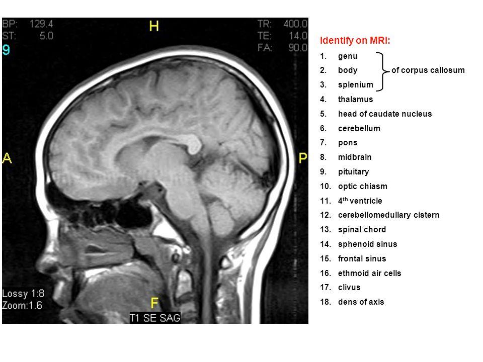 Old Fashioned Mri Iac Anatomy Inspiration - Image of internal organs ...
