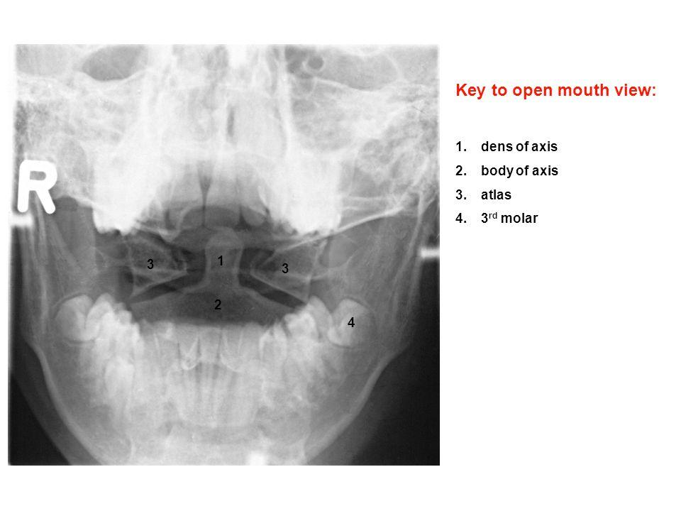 Identify on a-p head x-ray: 1.frontal sinus 2.ethmoid air cells 3 ...