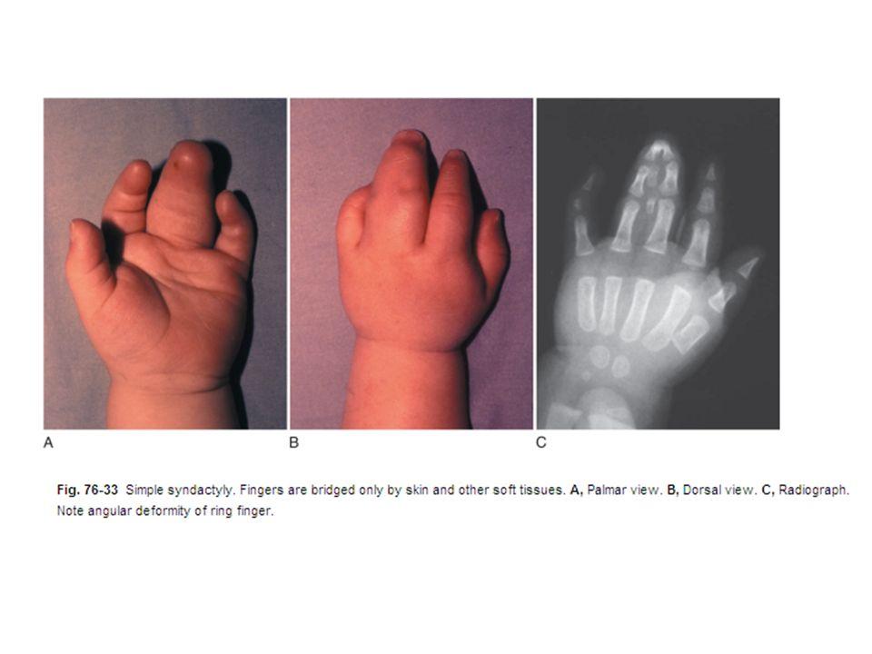 Syndactyl/Polydactyl fingerprints? : forensics
