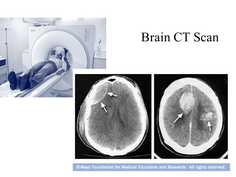 Enchanting Brain Anatomy Ct Component - Anatomy Ideas - yunoki.info