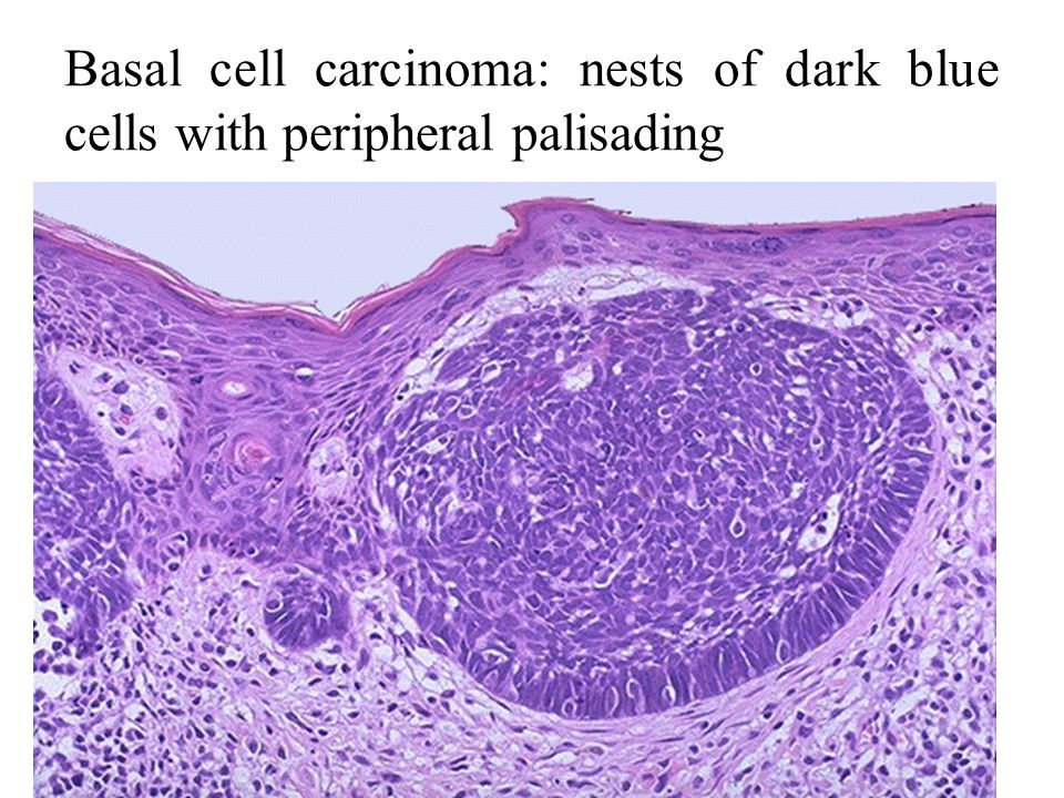 basal cell carcinoma essay Unlike most editing & proofreading services, we edit for everything: grammar, spelling, punctuation, idea flow, sentence structure, & more get started now.