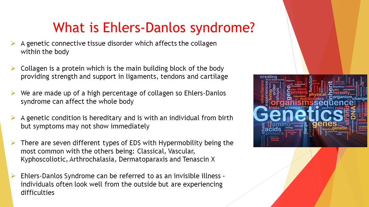 the history diagnosis and treatment of ehlers donlos sydrome Facts & information about ehlers-danlos syndrome along with family history, can lead to a diagnosis of eds there is no treatment.