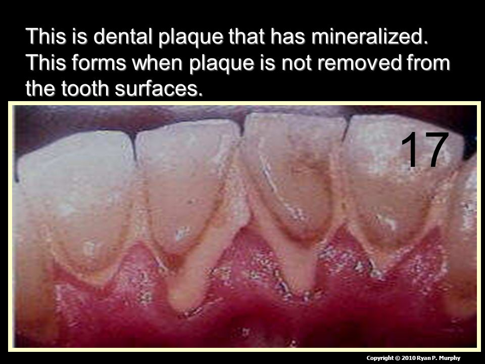 This is dental plaque that has mineralized.