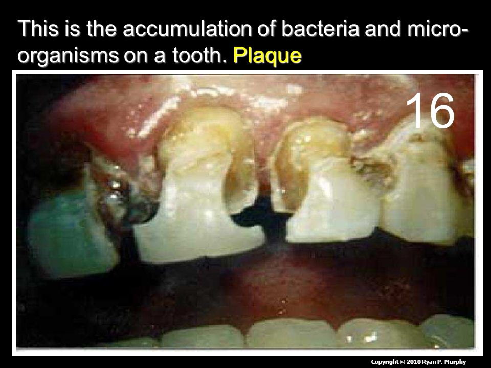 This is the accumulation of bacteria and micro- organisms on a tooth.