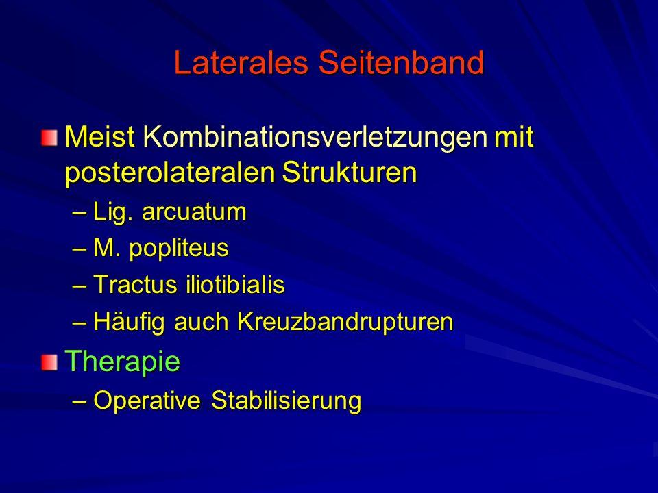 Erfreut Zerrissene Laterale Seitenband Knie Galerie - Anatomie Von ...