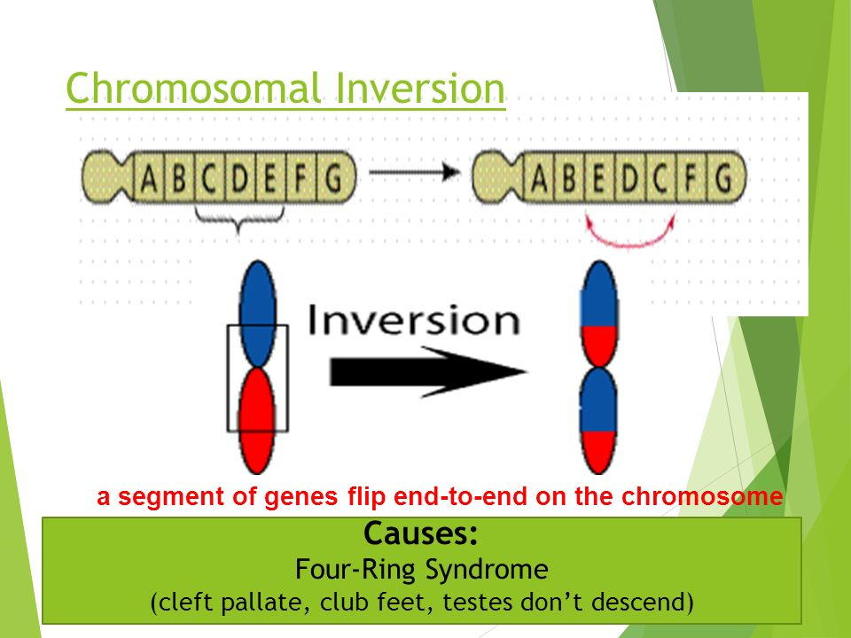 Chromosomal Inversion a segment of genes flip end-to-end on the chromosome Causes: Four-Ring Syndrome (cleft pallate, club feet, testes don't descend)