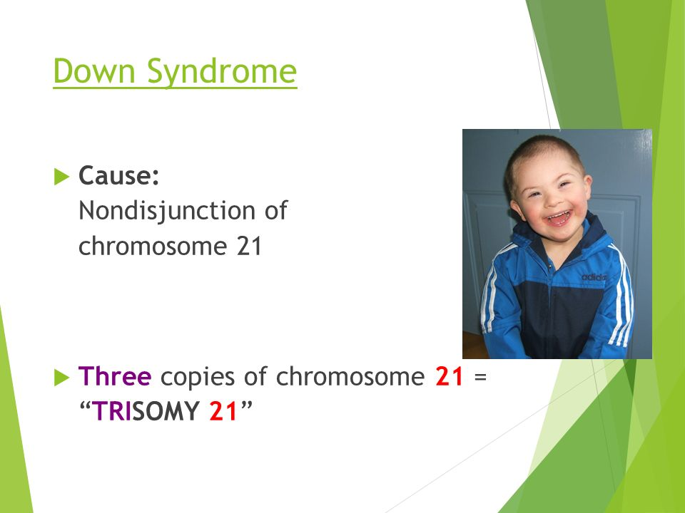 Down Syndrome  Cause: Nondisjunction of chromosome 21  Three copies of chromosome 21 = TRISOMY 21