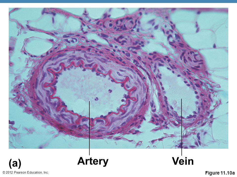 © 2012 Pearson Education, Inc. Figure 11.10a Artery (a) Vein