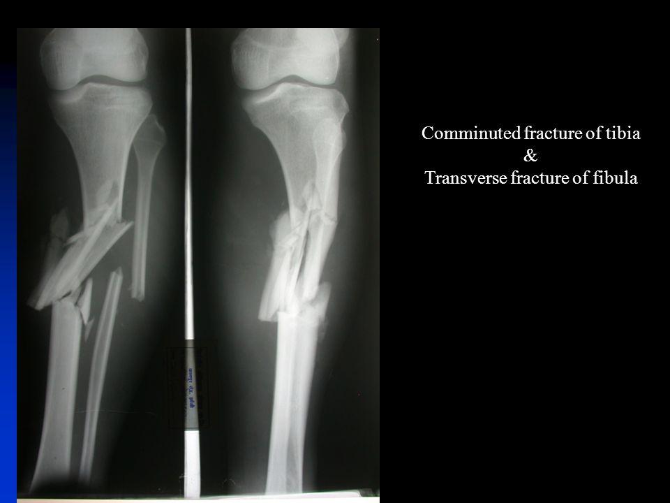 Bone Fractures Fracture Hematoma Bony Repair 1hematoma 2