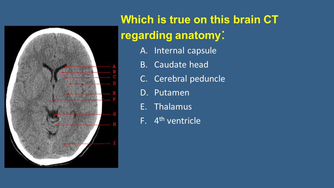 Neuroradiology Interactive Lecture 366 Rad Radiology Prof Ibrahim