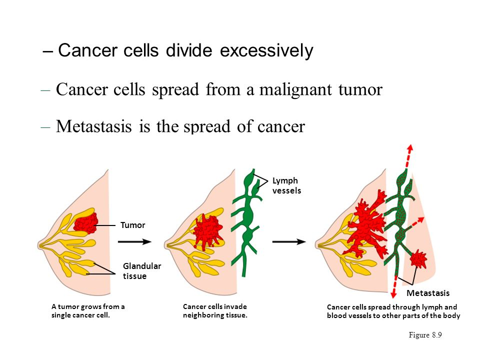 –Cancer cells divide excessively –Cancer cells spread from a malignant tumor –Metastasis is the spread of cancer Tumor Glandular tissue A tumor grows from a single cancer cell.