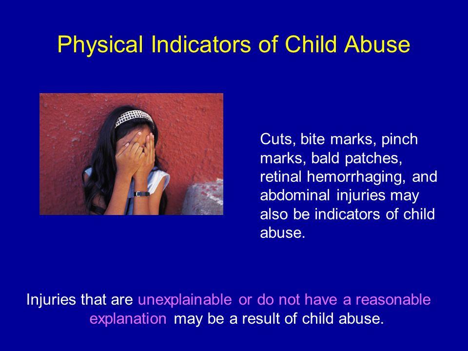 idenifty child abuse