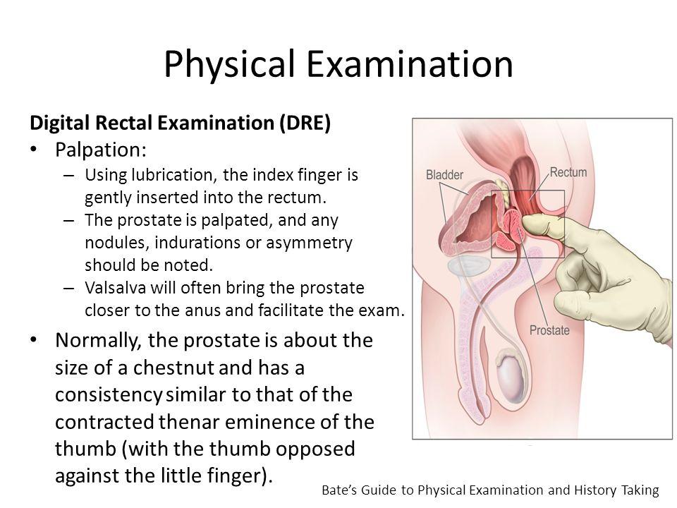 palpation prostata