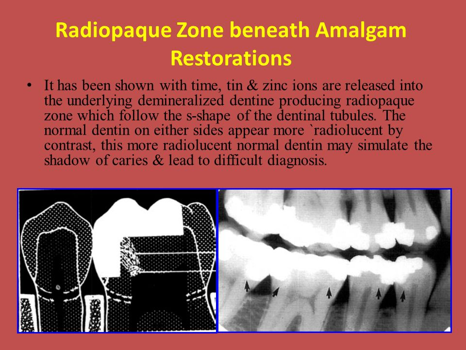 Radiopaque Zone beneath Amalgam Restorations It has been shown with time, tin & zinc ions are released into the underlying demineralized dentine producing radiopaque zone which follow the s-shape of the dentinal tubules.