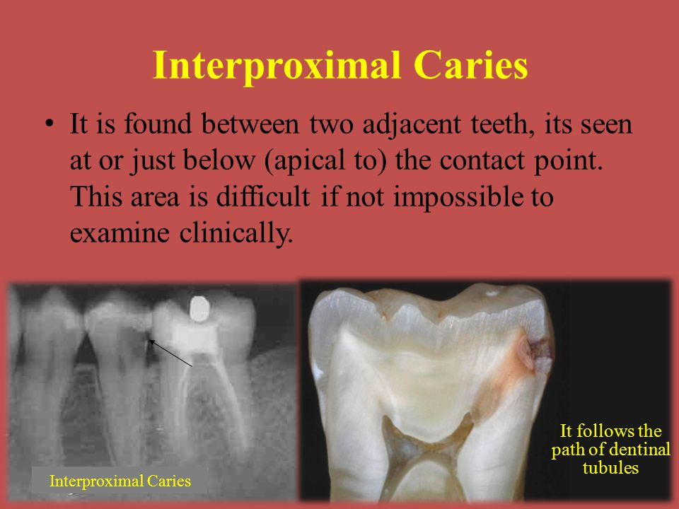 Interproximal Caries It is found between two adjacent teeth, its seen at or just below (apical to) the contact point.