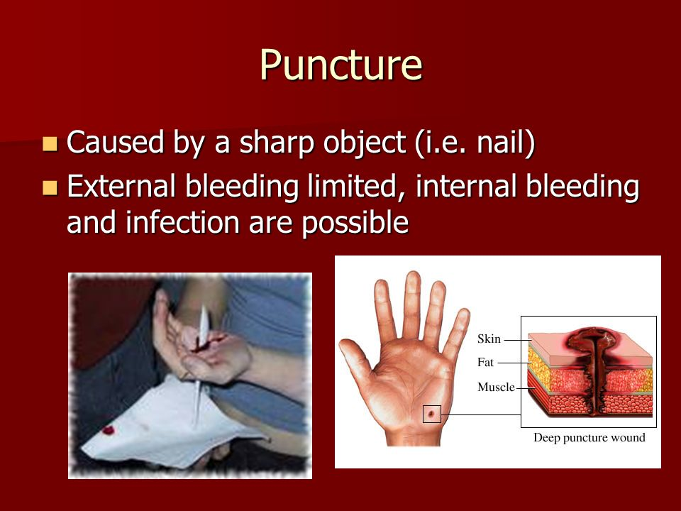 wounds and bleeding 1st aid Freshman first aid project 2w please add group names-two different kinds of wounds, closed wounds which are injuries in soft tissues, and open wounds which are when the tissue is broken.