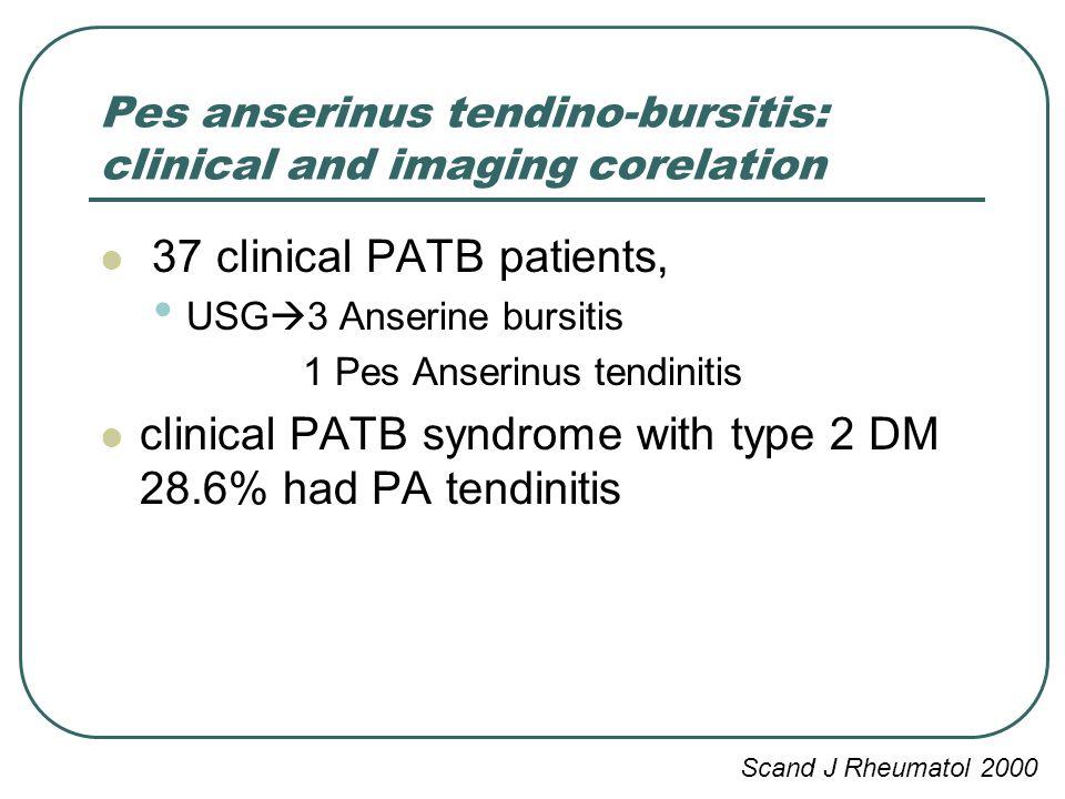 the clinical description of bursitis 62: greater trochanteric pain syndrome trochanteric bursitis thus leading to the current clinical description of this entity as gtps.