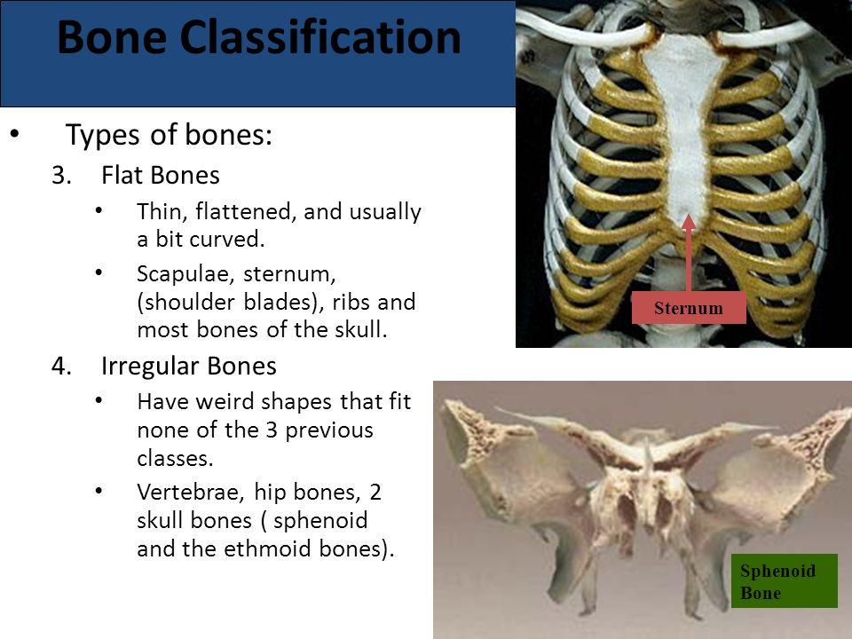 the major structure  bones oss/e, oss/i, oster/o, ost/o  bone, Sphenoid