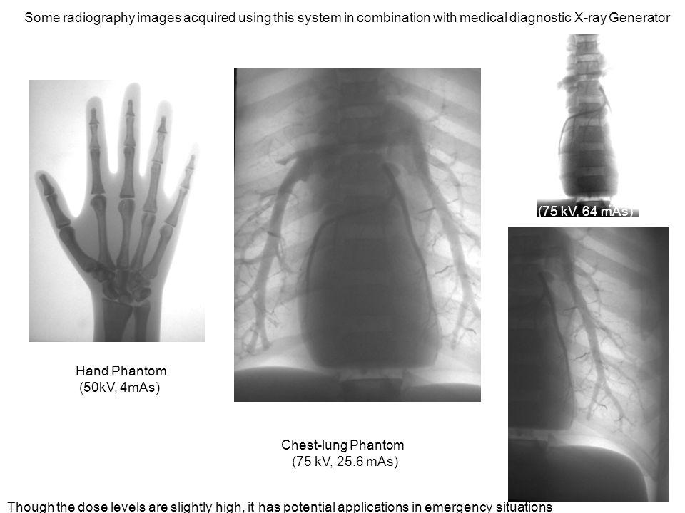 Development Of Digital Medical Imaging Systems At Barc Mumbai Ps Rhslideplayer: 75 Se Radiography Camera At Elf-jo.com