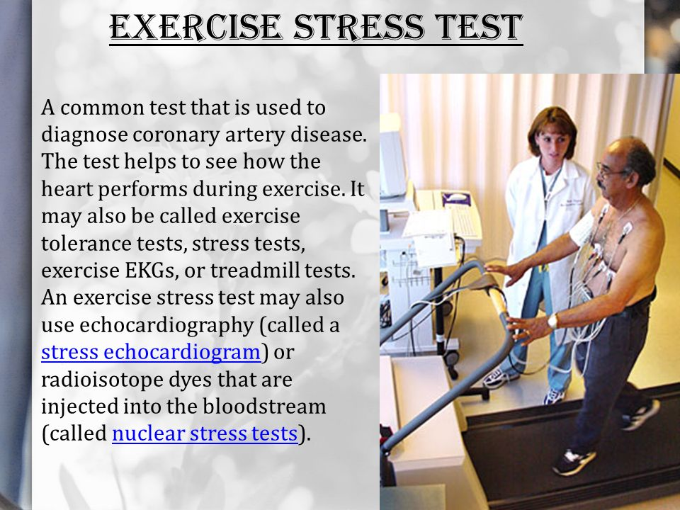 stress echocardiogram test