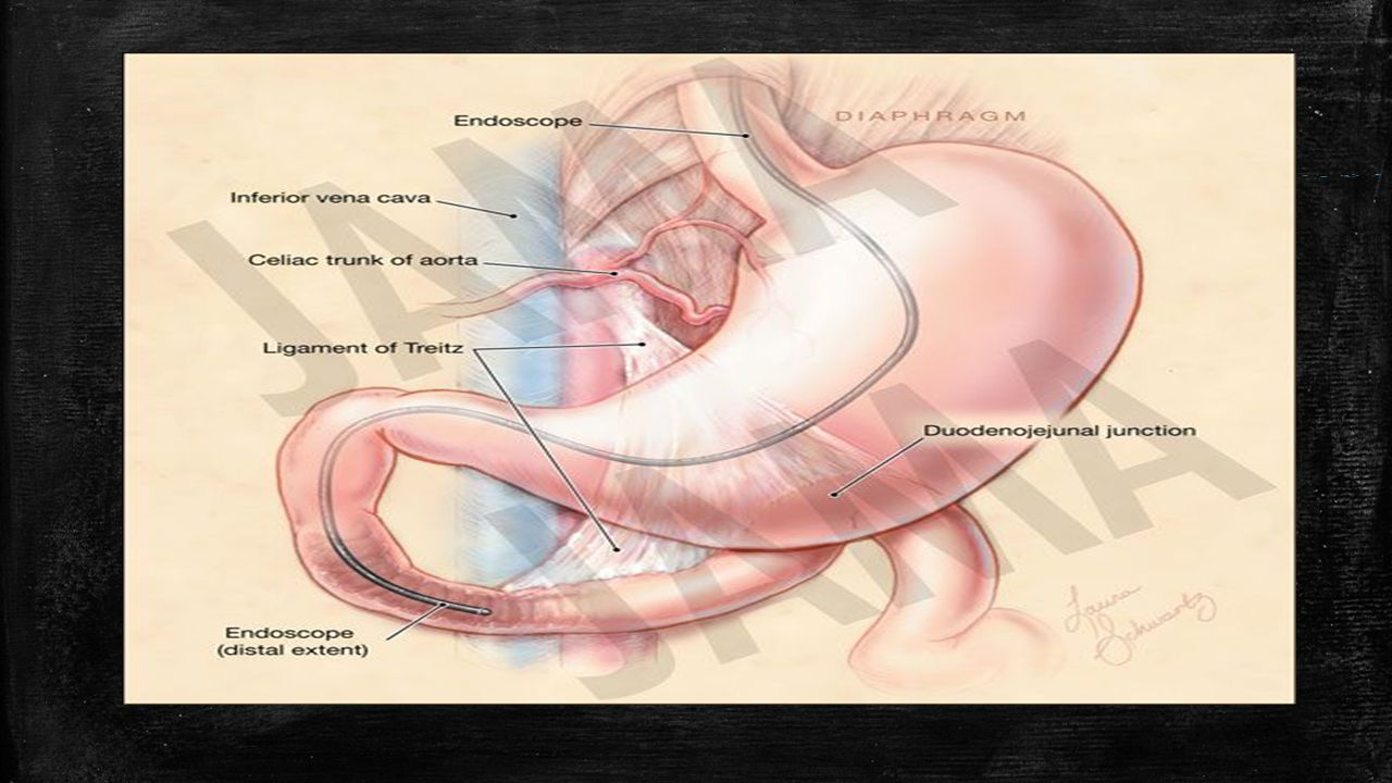 Lower gi bleeding ppt download 4 sciox Images