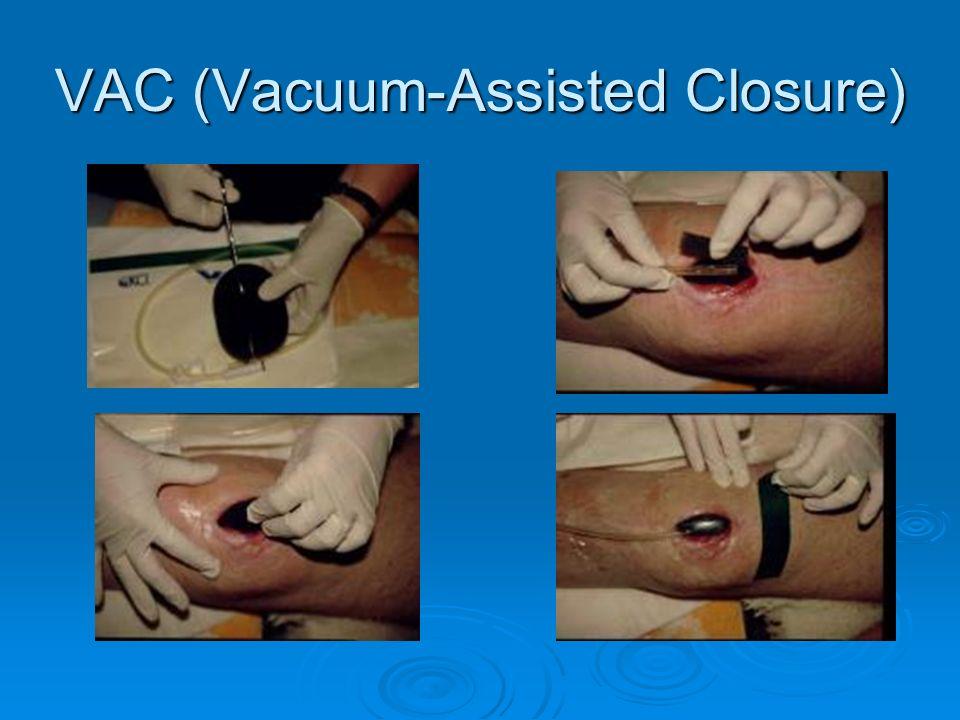 26 VAC Vacuum Assisted Closure