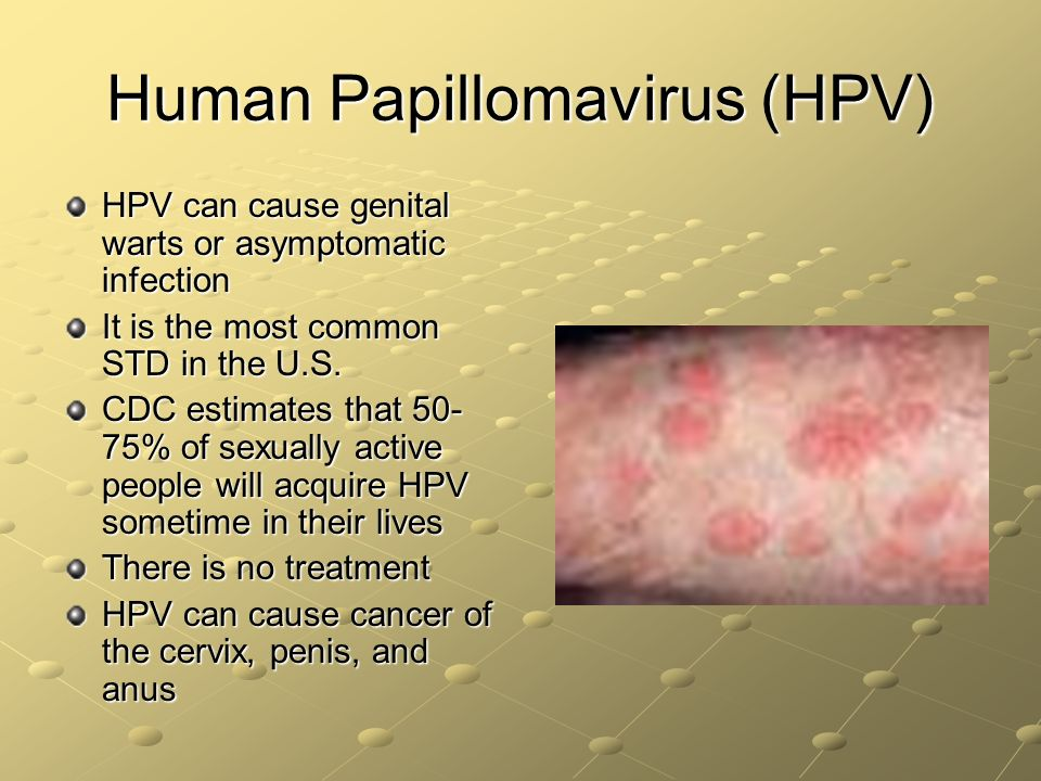 a description of the human papillomavirus as the most common sexually transmitted disease Human papillomavirus (hpv) is the most common sexually transmitted disease, but because the disease can lay dormant for years, it.