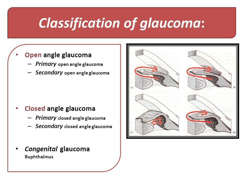 Viagra And Glaucoma
