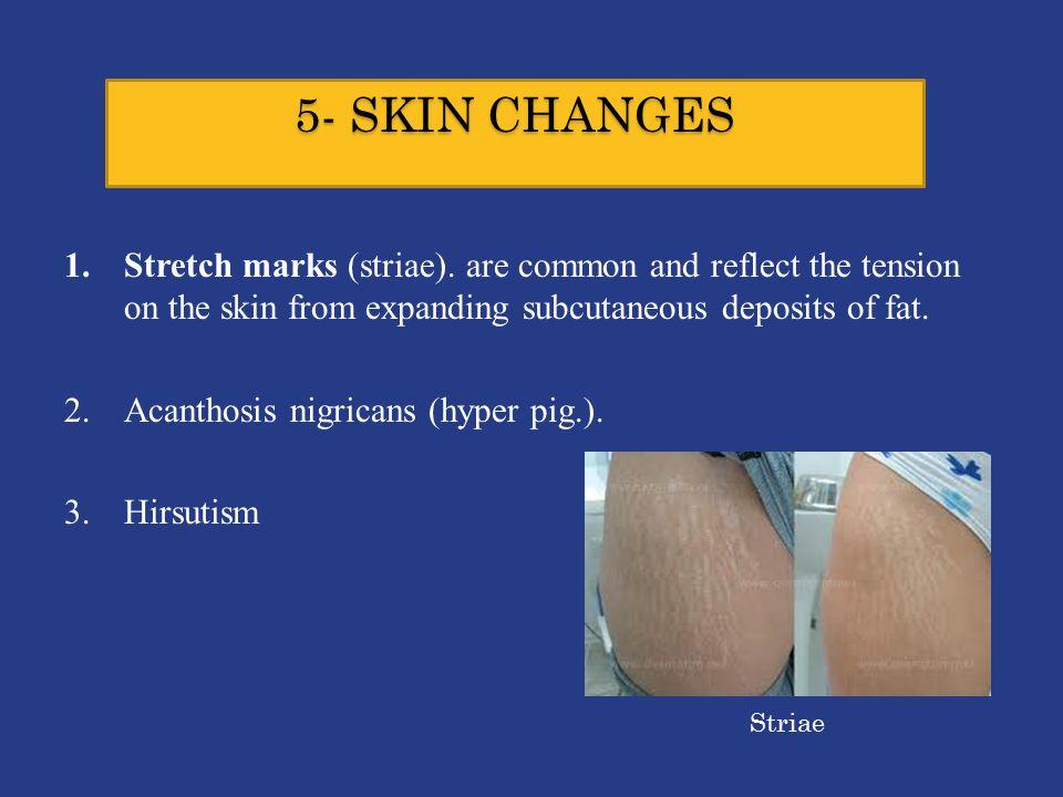 5- SKIN CHANGES 1.Stretch marks (striae).