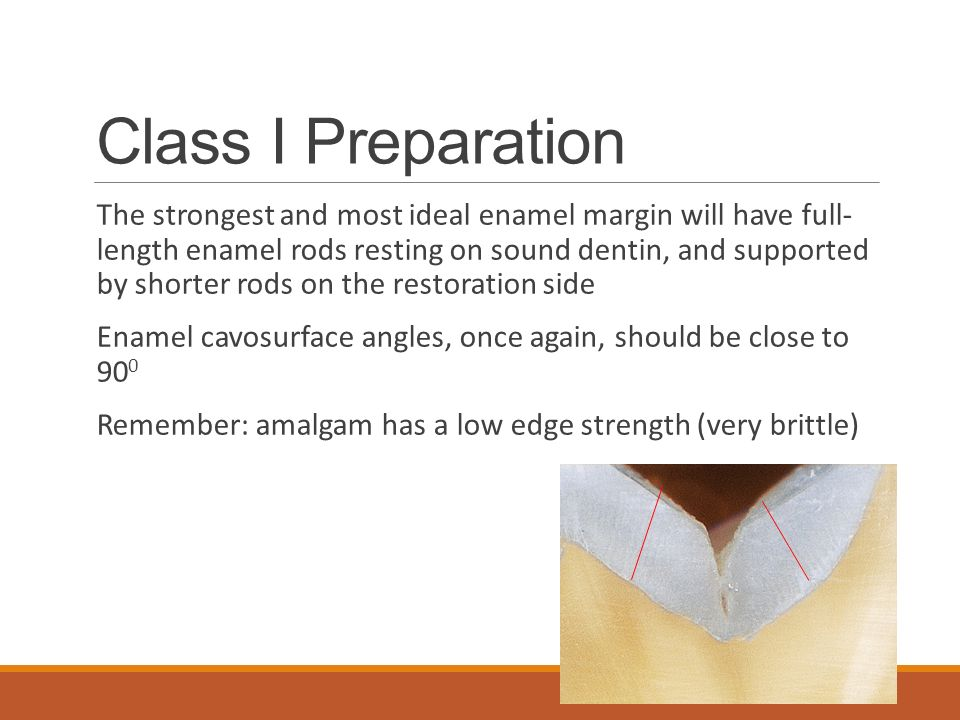 Class I Preparation The strongest and most ideal enamel margin will have full- length enamel rods resting on sound dentin, and supported by shorter rods on the restoration side Enamel cavosurface angles, once again, should be close to 90 0 Remember: amalgam has a low edge strength (very brittle)