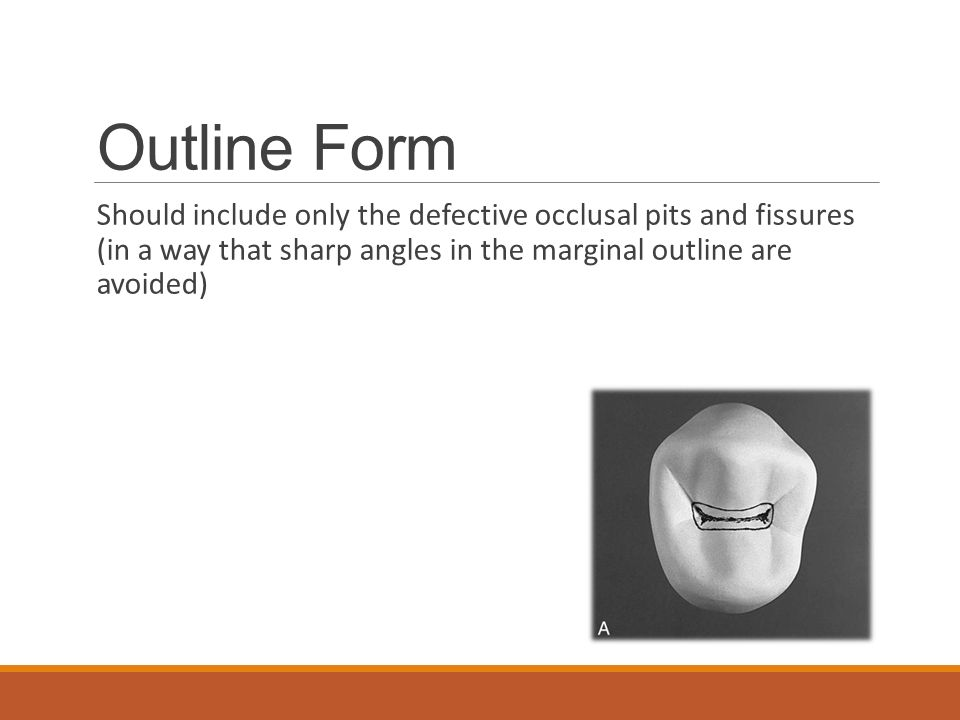 Outline Form Should include only the defective occlusal pits and fissures (in a way that sharp angles in the marginal outline are avoided)