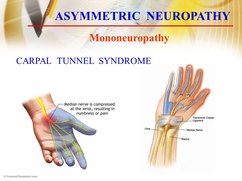 Mononeuropathy ASYMMETRIC NEUROPATHY CARPAL TUNNEL SYNDROME