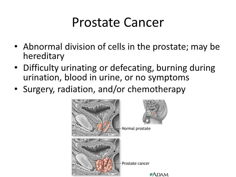 Prostate Cancer Abnormal division of cells in the prostate; may be hereditary Difficulty urinating or defecating, burning during urination, blood in urine, or no symptoms Surgery, radiation, and/or chemotherapy