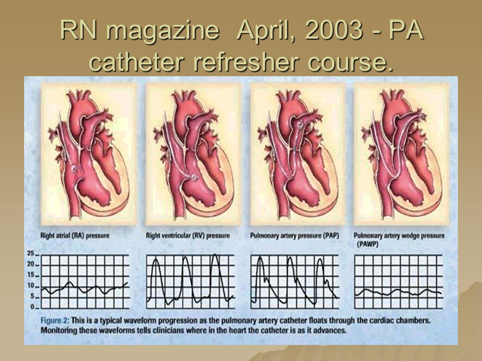 RN magazine April, 2003 - PA catheter refresher course.