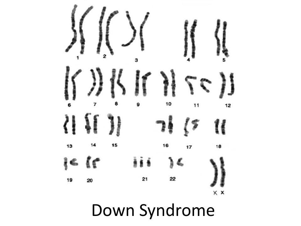 Turn in your Karyotype worksheets from last class in INBOX – Karyotypes Worksheet