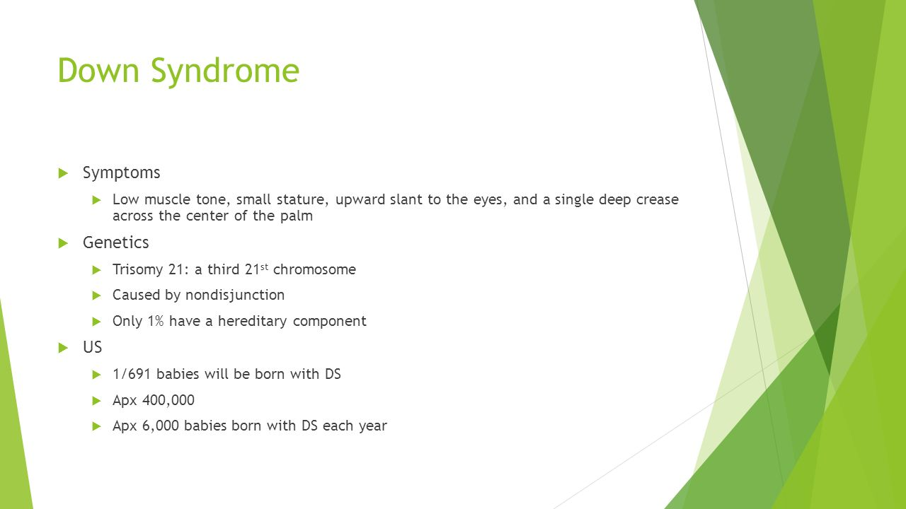 Down Syndrome  Symptoms  Low muscle tone, small stature, upward slant to the eyes, and a single deep crease across the center of the palm  Genetics  Trisomy 21: a third 21 st chromosome  Caused by nondisjunction  Only 1% have a hereditary component  US  1/691 babies will be born with DS  Apx 400,000  Apx 6,000 babies born with DS each year