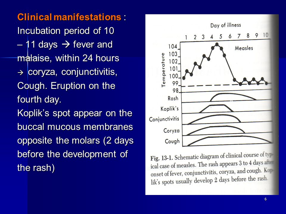 6 Clinical manifestations : Incubation period of 10 – 11 days  fever and malaise, within 24 hours  coryza, conjunctivitis, Cough.