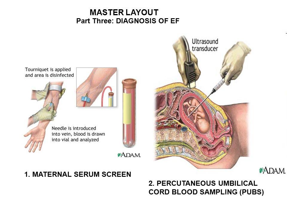 CORD BLOOD SAMPLING PDF