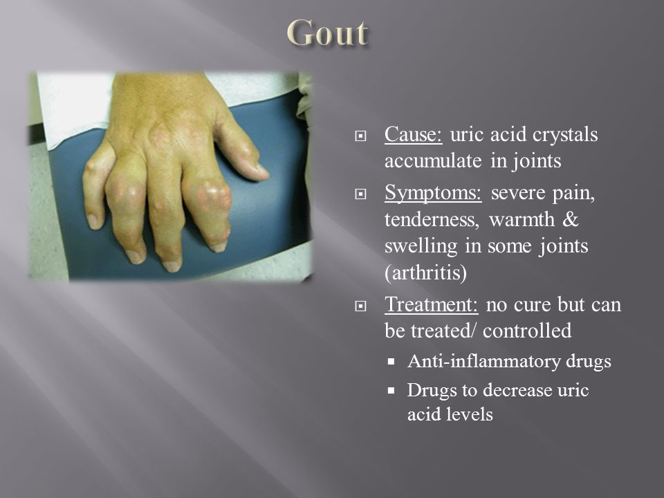therapy for gout food for high uric acid levels food that cause high uric acid level