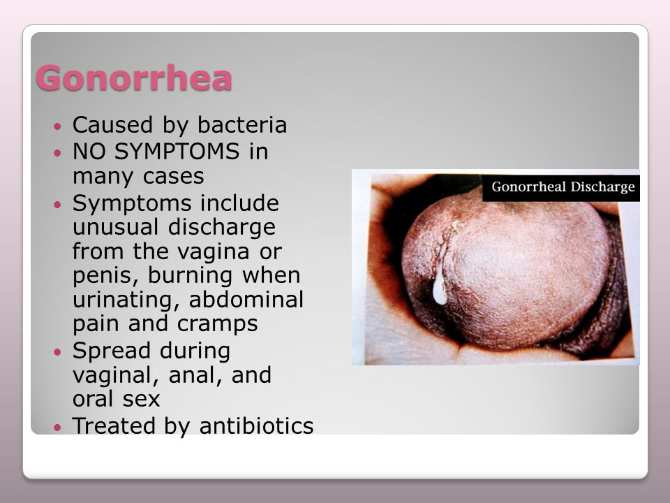 Gonorrhea Caused by bacteria NO SYMPTOMS in many cases Symptoms include unusual discharge from the vagina or penis, burning when urinating, abdominal
