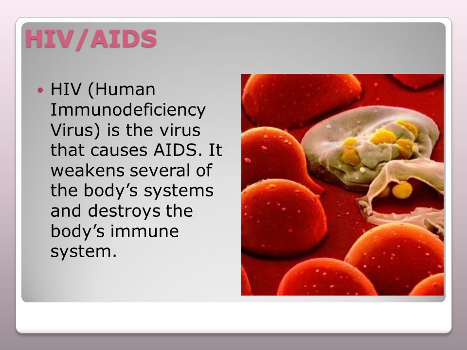 HIV/AIDS HIV (Human Immunodeficiency Virus) is the virus that causes AIDS. It weakens several of the body's systems and destroys the body's immune sys