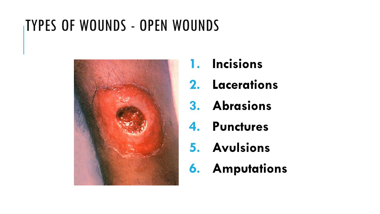 TYPES OF WOUNDS - OPEN WOUNDS 1. Incisions 2. Lacerations 3.