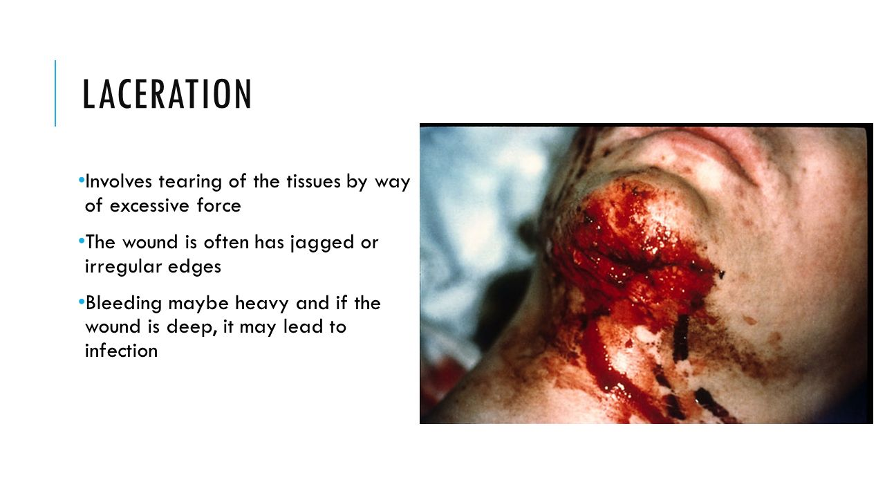 LACERATION Involves tearing of the tissues by way of excessive force The wound is often has jagged or irregular edges Bleeding maybe heavy and if the wound is deep, it may lead to infection